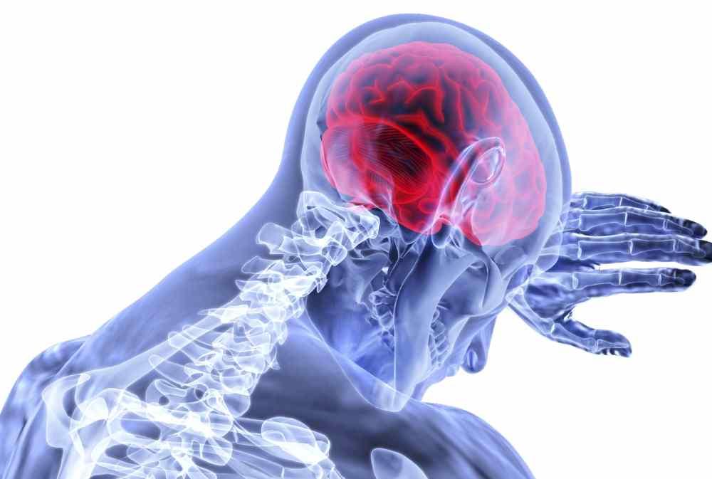 Udar mózgu – pierwsza pomoc przy udarze